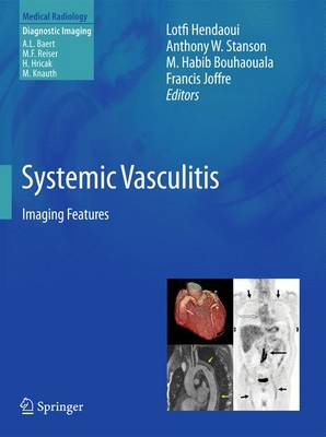 Systemic Vasculitis: Imaging Features - Medical Radiology (Paperback)