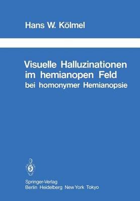 Visuelle Halluzinationen im Hemianopen Feld bei Homonymer Hemianopsie - Schriftenreihe Neurologie / Neurology Series 26 (Paperback)