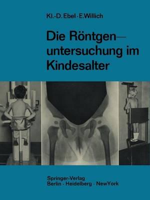 Die R ntgenuntersuchung Im Kindesalter: Technik Und Indikation (Paperback)