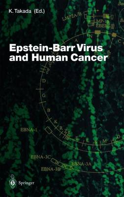 Epstein-Barr Virus and Human Cancer - Current Topics in Microbiology and Immunology 258 (Paperback)