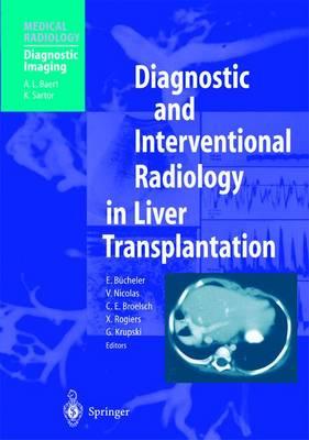 Diagnostic and Interventional Radiology in Liver Transplantation - Medical Radiology (Paperback)
