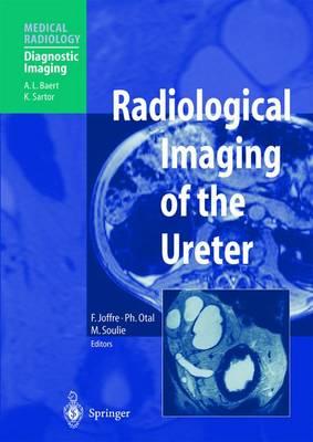 Radiological Imaging of the Ureter - Diagnostic Imaging (Paperback)