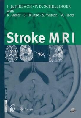 Stroke MRI (Paperback)