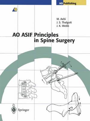AO ASIF Principles in Spine Surgery (Paperback)