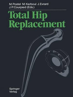 Total Hip Replacement (Paperback)
