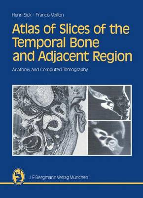 Atlas of Slices of the Temporal Bone and Adjacent Region: Anatomy and Computed Tomography Horizontal, Frontal, Sagittal Sections (Paperback)