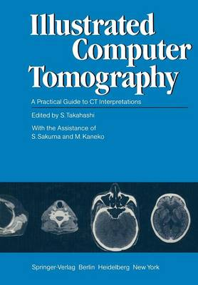Illustrated Computer Tomography: A Practical Guide to CT Interpretations (Paperback)