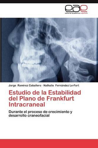 Estudio de La Estabilidad del Plano de Frankfurt Intracraneal (Paperback)