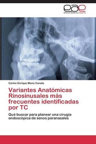 Variantes Anatomicas Rinosinusales Mas Frecuentes Identificadas Por Tc (Paperback)