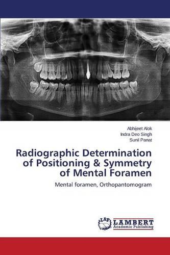 Radiographic Determination of Positioning & Symmetry of Mental Foramen (Paperback)
