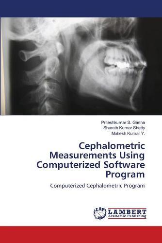 Cephalometric Measurements Using Computerized Software Program (Paperback)
