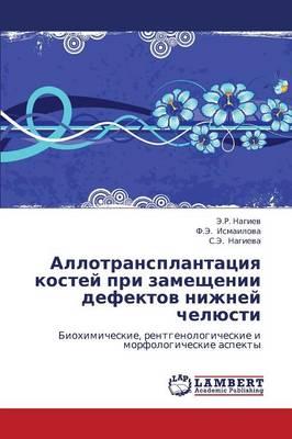 Allotransplantatsiya Kostey Pri Zameshchenii Defektov Nizhney Chelyusti (Paperback)