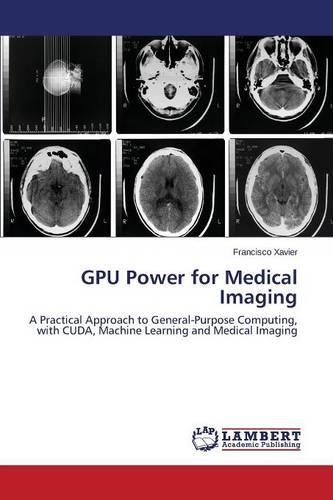 Gpu Power for Medical Imaging (Paperback)