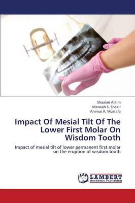 Impact of Mesial Tilt of the Lower First Molar on Wisdom Tooth (Paperback)