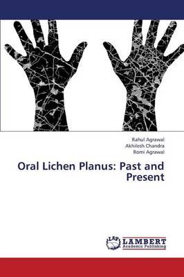 Oral Lichen Planus: Past and Present (Paperback)