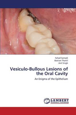Vesiculo-Bullous Lesions of the Oral Cavity (Paperback)