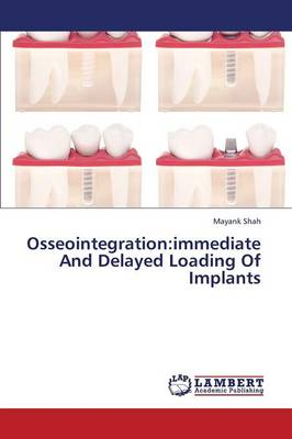 Osseointegration: Immediate and Delayed Loading of Implants (Paperback)