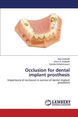 Occlusion for Dental Implant Prosthesis (Paperback)