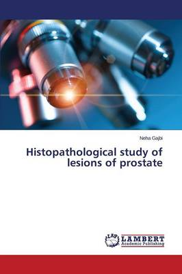 Histopathological Study of Lesions of Prostate (Paperback)