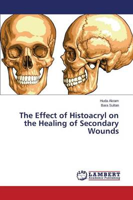 The Effect of Histoacryl on the Healing of Secondary Wounds (Paperback)
