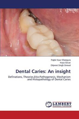 Dental Caries: An Insight (Paperback)