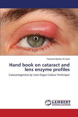 Hand Book on Cataract and Lens Enzyme Profiles (Paperback)
