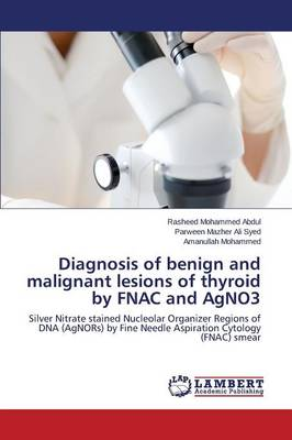 Diagnosis of Benign and Malignant Lesions of Thyroid by Fnac and Agno3 (Paperback)