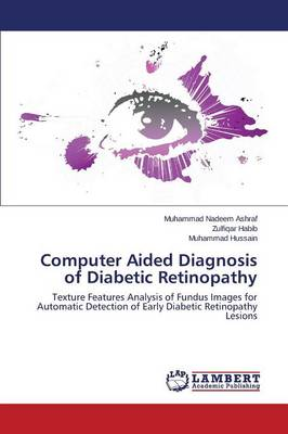 Computer Aided Diagnosis of Diabetic Retinopathy (Paperback)