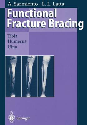 Functional Fracture Bracing: Tibia, Humerus, and Ulna (Paperback)