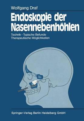 Endoskopie Der Nasennebenh hlen: Technik - Typische Befunde, Therapeutische M glichkeiten (Paperback)