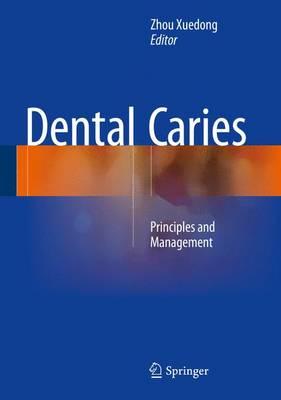 Dental Caries: Principles and Management (Hardback)