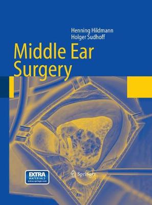 Middle Ear Surgery (Paperback)