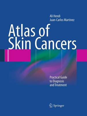 Atlas of Skin Cancers: Practical Guide to Diagnosis and Treatment (Paperback)