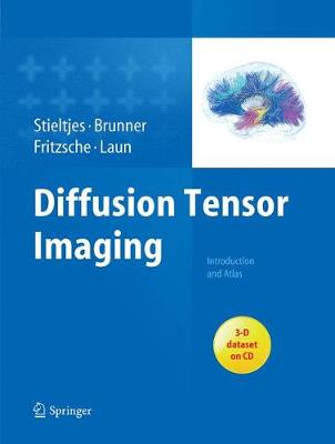 Diffusion Tensor Imaging: Introduction and Atlas (Paperback)