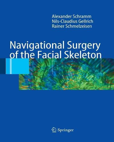 Navigational Surgery of the Facial Skeleton (Paperback)