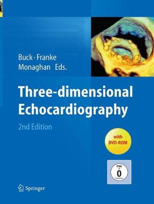 Three-dimensional Echocardiography (Paperback)