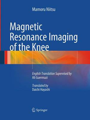 Magnetic Resonance Imaging of the Knee (Paperback)