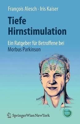 Tiefe Hirnstimulation: Ein Ratgeber Fur Betroffene Bei Morbus Parkinson (Paperback)
