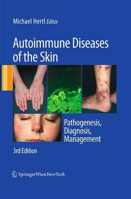 Autoimmune Diseases of the Skin: Pathogenesis, Diagnosis, Management (Paperback)