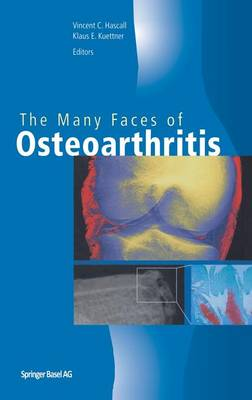 The Many Faces of Osteoarthritis (Hardback)