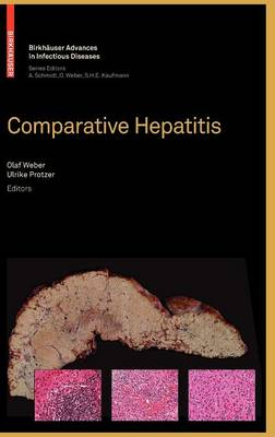 Comparative Hepatitis - Birkhauser Advances in Infectious Diseases (Hardback)