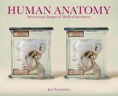 Human Anatomy: Stereoscopic Images of Medical Specimens (Hardback)