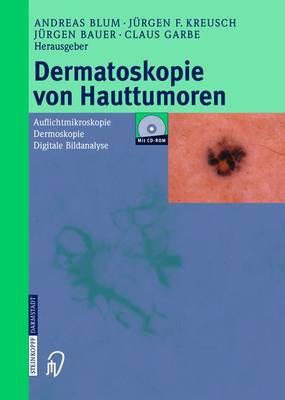 Dermatoskopie Von Hauttumoren: Auflichtmikroskopie - Dermoskopie - Digitale Bildanalyse (Hardback)