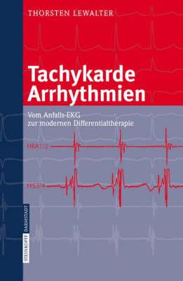 Tachykarde Arrhythmien: Vom Anfalls-Ekg Zur Modernen Differenzialtherapie (Paperback)