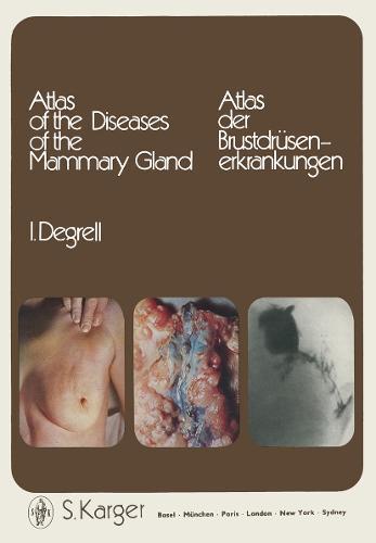 Atlas of the Diseases of the Mammary Gland / Atlas der Brustdrusenerkrankungen: Atlas der Brustdrusenerkrankungen. (Hardback)