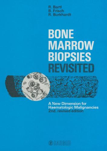 Bone Marrow Biopsies Revisited: A New Dimension for Hematologic Malignancies. (Hardback)