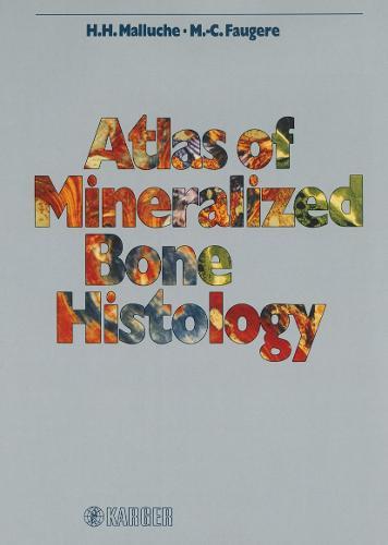 Atlas of Mineralized Bone Histology (Hardback)