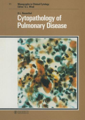Cytopathology of Pulmonary Disease - Monographs in Clinical Cytology 11 (Hardback)