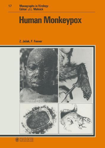 Human Monkeypox - Monographs in Virology 17 (Hardback)