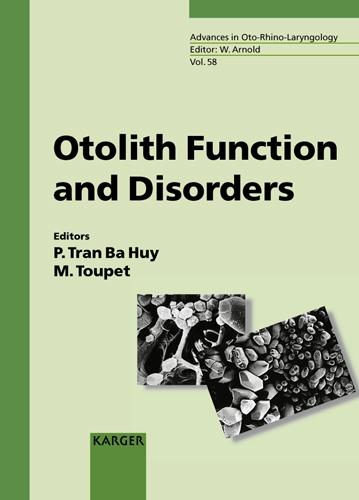 Otolith Function and Disorders - Advances in Oto-Rhino-Laryngology 58 (Hardback)